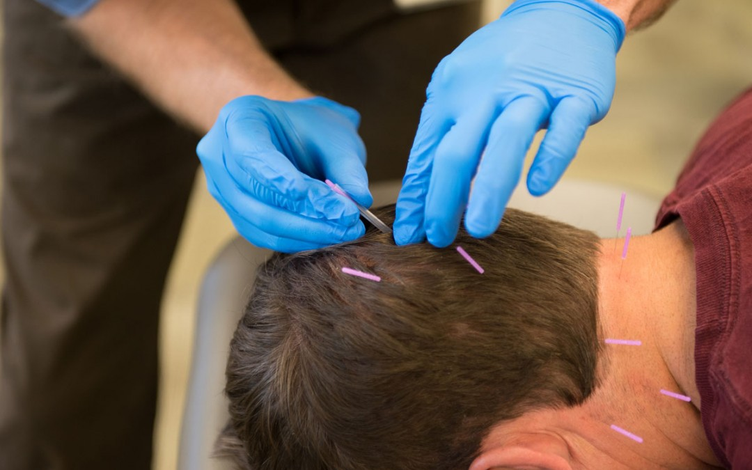 Dry Needling – What is it?